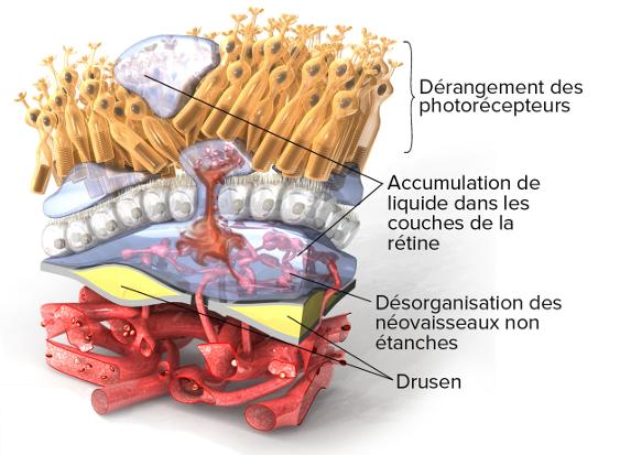 Comprendre science of amd - Symptome de fausse couche sans saignement ...